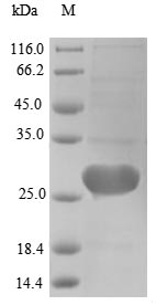 SDS-PAGE- Recombinant protein Human EC 2.1.1.63