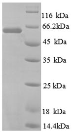 SDS-PAGE- Recombinant protein Human TROVE2