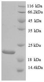 SDS-PAGE- Recombinant protein Human PLAU
