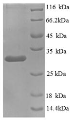 SDS-PAGE- Recombinant protein Human KNG1