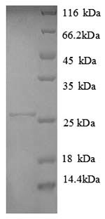 SDS-PAGE- Recombinant protein Human HLA-DPA1