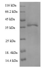 SDS-PAGE- Recombinant protein Human HLA-B