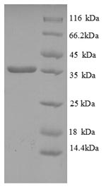 SDS-PAGE- Recombinant protein Human HLA-C