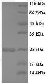 SDS-PAGE- Recombinant protein Rat Hras