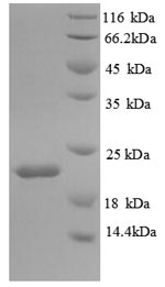 SDS-PAGE- Recombinant protein Mouse Il18bp