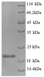 SDS-PAGE- Recombinant protein Mouse Il1b