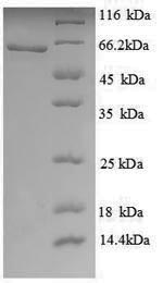 SDS-PAGE- Recombinant protein Human KAT5
