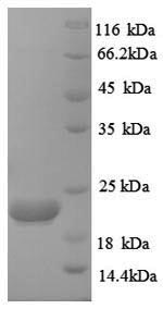 SDS-PAGE- Recombinant protein Human CASP8