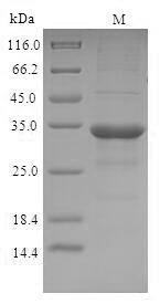 SDS-PAGE - Recombinant Cricetulus griseus C-C motif chemokine