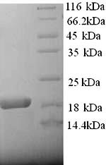 SDS-PAGE- Recombinant protein Rat A2m