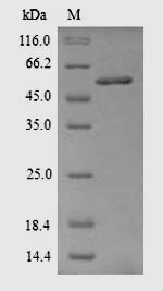 SDS-PAGE- Recombinant protein Rattus Acaca