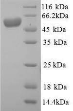 SDS-PAGE- Recombinant protein Human ALPI