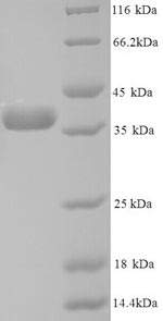 SDS-PAGE- Recombinant protein Human ANXA5