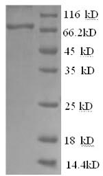 SDS-PAGE- Recombinant protein Human Btk