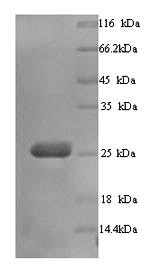 SDS-PAGE- Recombinant protein Human BTN3A3