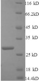 SDS-PAGE- Recombinant protein Mouse C1ql1