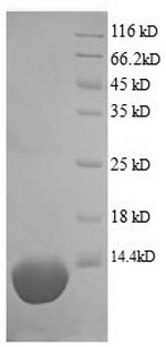 SDS-PAGE- Recombinant protein Pig C5
