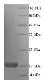 SDS-PAGE- Recombinant protein Human CALM1