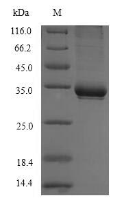 SDS-PAGE- Recombinant protein Human CD1C