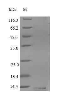 SDS-PAGE- Recombinant protein Human CD59