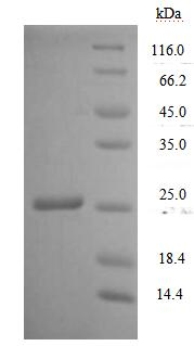 SDS-PAGE- Recombinant protein Human CD7