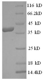 SDS-PAGE- Recombinant protein Human CPA3