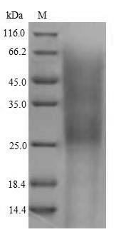 SDS-PAGE- Recombinant protein Mouse Cr2