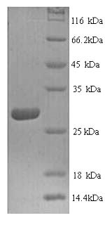 SDS-PAGE- Recombinant protein Human CTSK