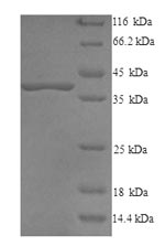 SDS-PAGE- Recombinant protein Bovine DCN
