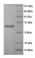SDS-PAGE- Recombinant protein Human DSP