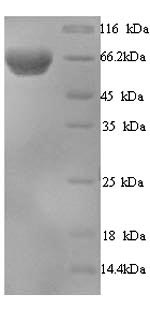 SDS-PAGE- Recombinant protein Human EIF2AK2