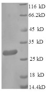 SDS-PAGE- Recombinant protein Human FCGRT