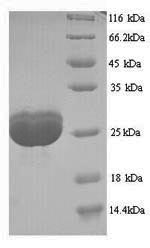 SDS-PAGE- Recombinant protein Human FLG