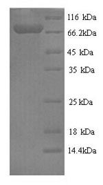 SDS-PAGE- Recombinant protein Human FPGT
