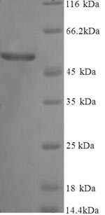 SDS-PAGE- Recombinant protein Human GC