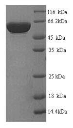SDS-PAGE- Recombinant protein Human GP1BA