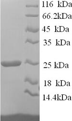 SDS-PAGE- Recombinant protein Human HAVCR2