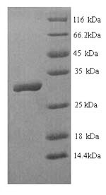 SDS-PAGE- Recombinant protein Human HOXB4