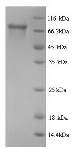SDS-PAGE- Recombinant protein Human HSD17B4