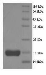 SDS-PAGE- Recombinant protein Human IL2