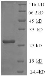 SDS-PAGE- Recombinant protein Mpuse Il2rb