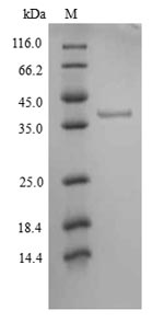 SDS-PAGE- Recombinant protein Human JAK1