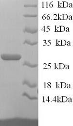 SDS-PAGE- Recombinant protein Human JAM2