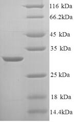 SDS-PAGE- Recombinant protein Rat Kng1