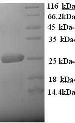 SDS-PAGE- Recombinant protein Human LRP2