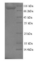 SDS-PAGE- Recombinant protein Rat Mapt