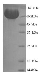 SDS-PAGE- Recombinant protein Human MME