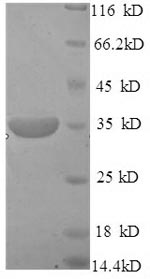 SDS-PAGE- Recombinant protein Human MPG