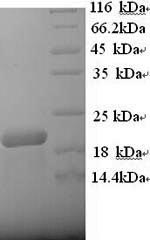 SDS-PAGE- Recombinant protein Human MS4A1