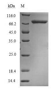 SDS-PAGE- Recombinant protein Human MTHFR